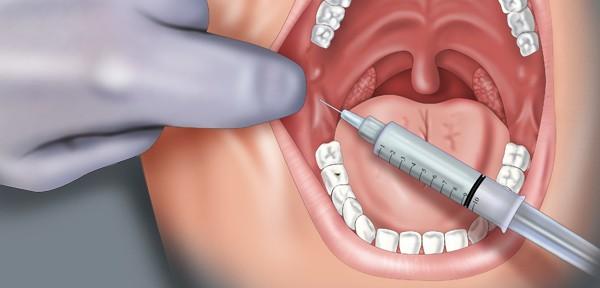 Палатинальная анестезия