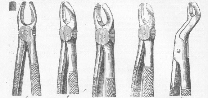 Удаление щипцами правых нижних премоляров
