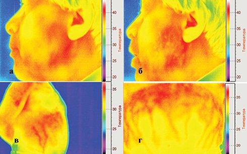 Дистанционная инфракрасная термография