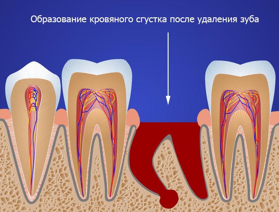 Перелом удаляемого зуба или его корня