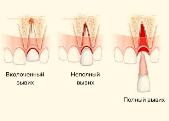 Перелом, вывих и удаление соседнего зуба