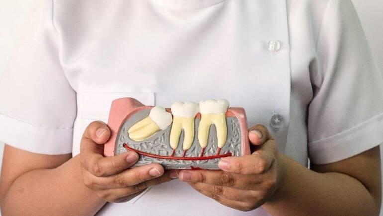 Затрудненное прорезывание зуба мудрости