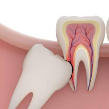 Нарушения прорезывания зубов мудрости
