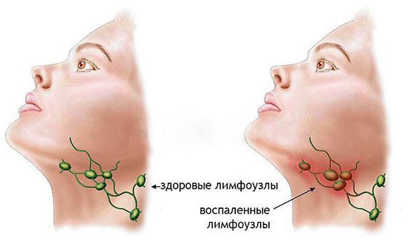 Морфологическое подтверждение диагноза лимфаденита