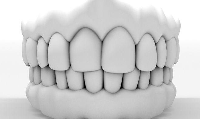 Состояние окружающих тканей и зубов-антагонистов