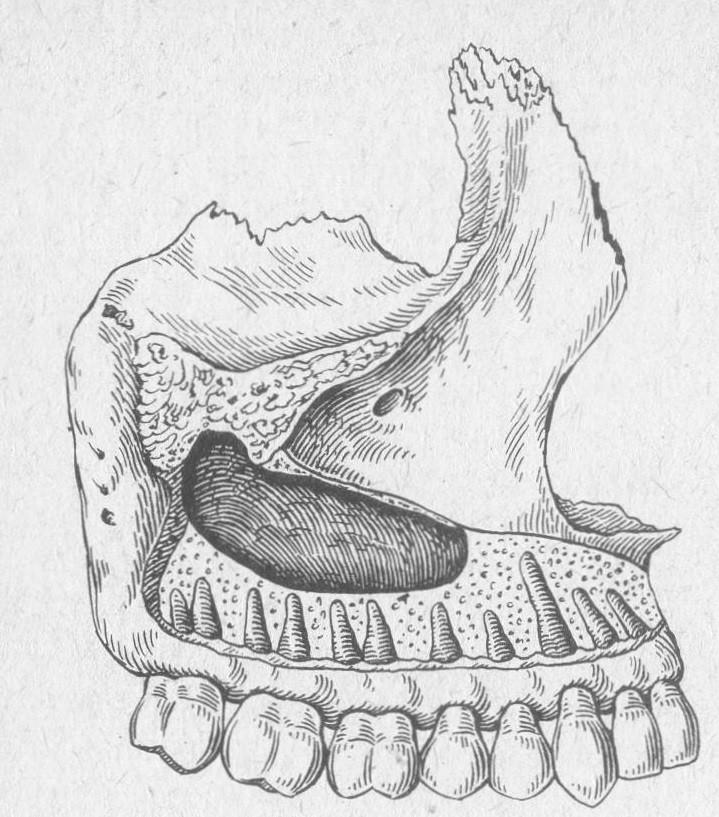 Одонтогенное воспаление верхнечелюстной пазухи (гайморит)