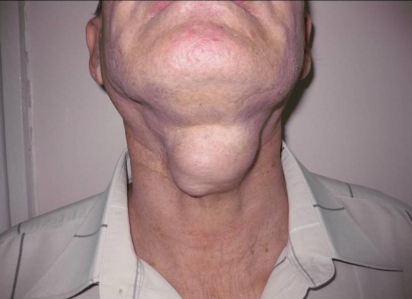 Диагностика лимфаденита с дермоидными и эпидермоидными кистами