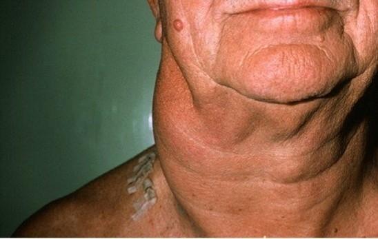 Течение лимфаденитов у людей пожилого возраста