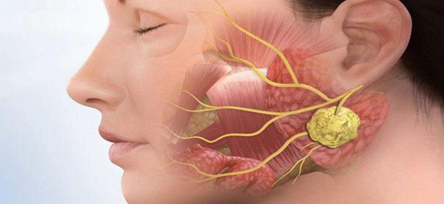 Флегмоны мягких тканей дна полости рта и шеи
