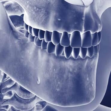 Особенности течения одонтогенного остеомиелита у людей пожилого возраста