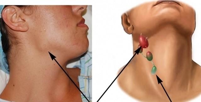Лечение острого лимфаденита
