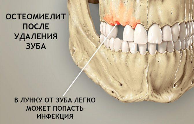 Осложнения остеомиелита верхней челюсти