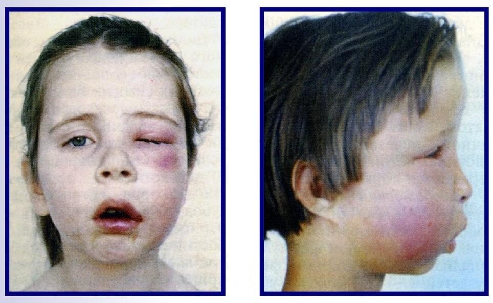 Особенности остеомиелита челюстей у детей