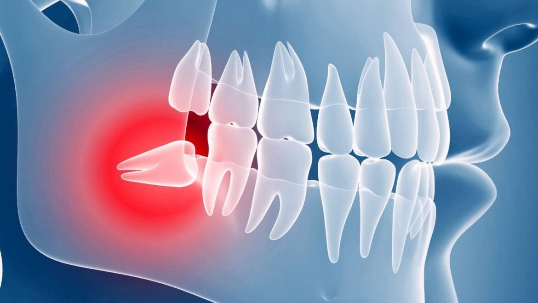 Клиническая картина ретенированного и дистопированного зуба