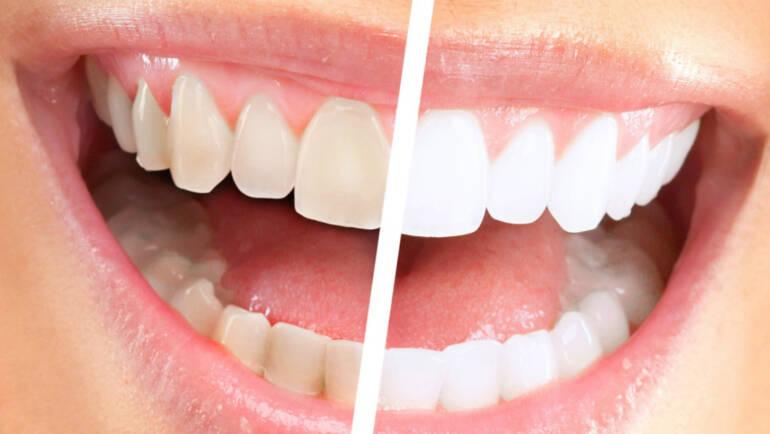 Терапевтическая стоматология и отбеливание зубов